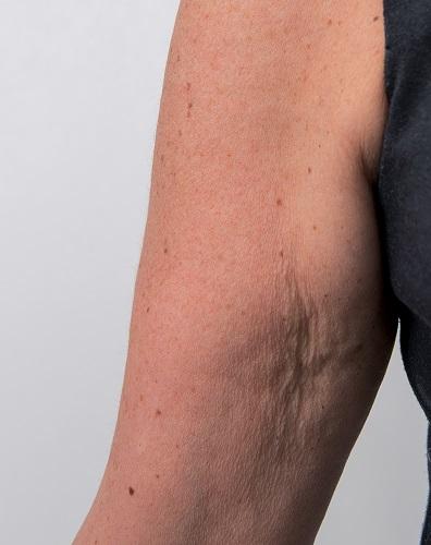 Viscoderm Arm - Before